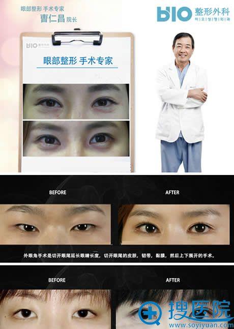 外眼角修复手术案例