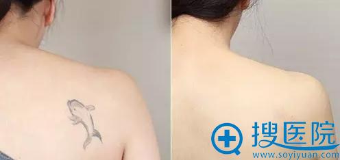 蜂巢皮秒祛纹身案例