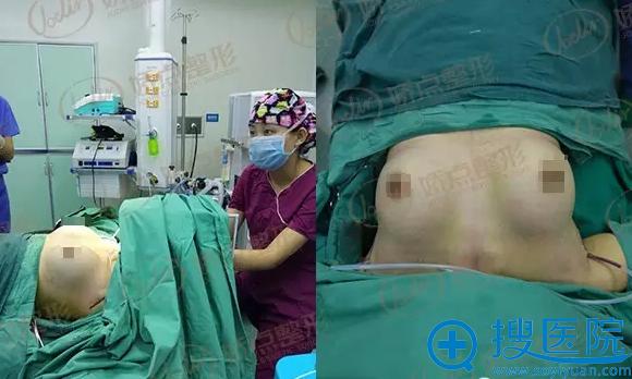 手术结束后效果