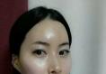 新帝瑞娜颧骨内推缩小术真人案例 实现完美面部轮廓