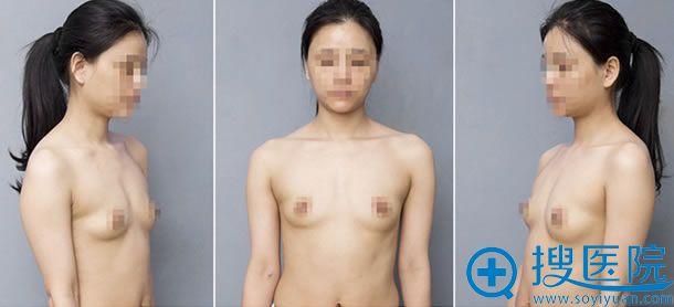 模特隆胸前的照片