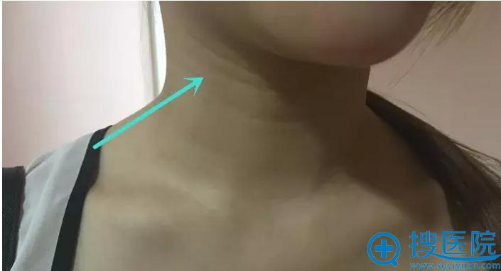 严重的颈纹