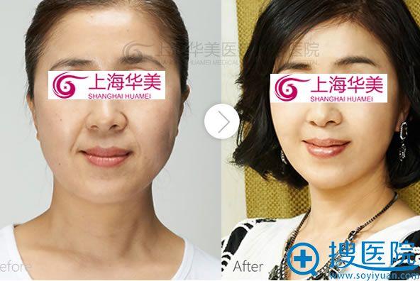 botox除皱案例