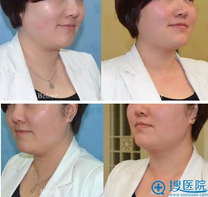 术前术后侧面对比照片