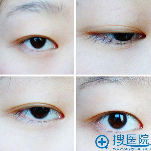 手术前内双眼睛照片
