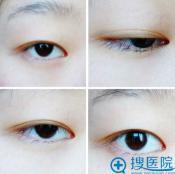 上海天大割双眼皮+开眼角真实案例 眼部黄金搭档塑造迷人双眼