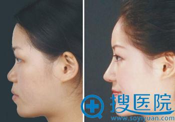 隆鼻尖案例对比图