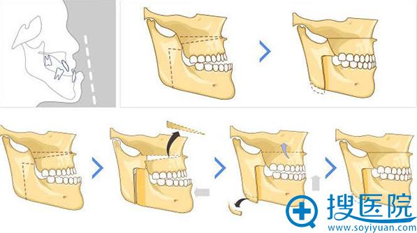 4D均衡双鄂手术流程