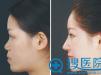 隆鼻尖应该选肋软骨、耳软骨还是鼻中隔软骨