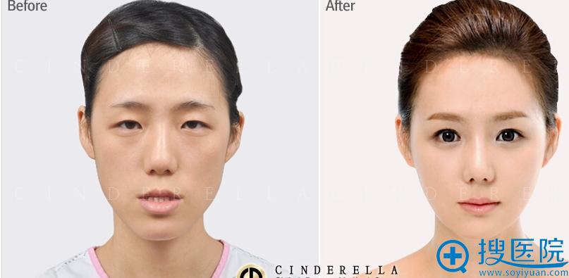 成功的下颌角手术案例