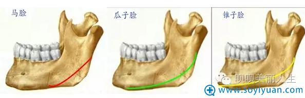 骨切除的范围与形成后期脸型的关系