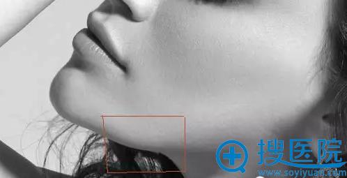 衍生下颌角图示