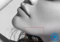 怎么避免下颌角术后出现的衍生下颌角
