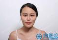 韩国女神轮廓手术真人案例 吊炸天的换头记录