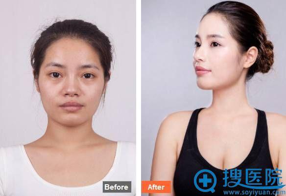 隆鼻术前术后惊艳对比