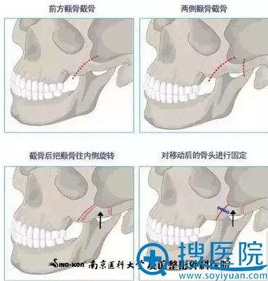 3D立体内窥镜超声骨刀矫正颧骨手术方法