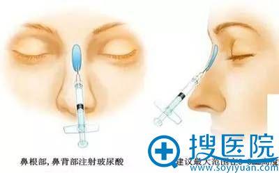 玻尿酸注射隆鼻图解