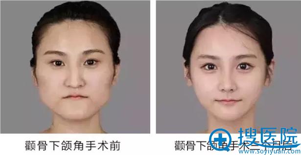 3D立体矫正颧骨术配合下颌角手术效果案例