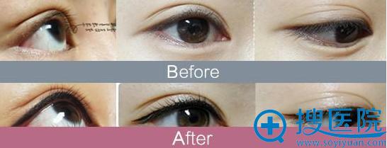 半永久化妆案例之纹眼线