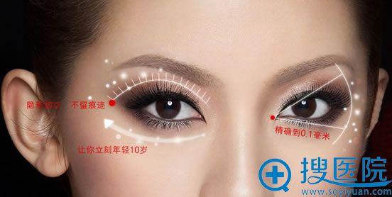 咸阳长城美容医院眼部整形价目表 2000元帮你告别小眼睛