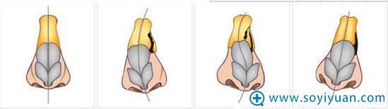 正常鼻子和C型、S型、I型的对比