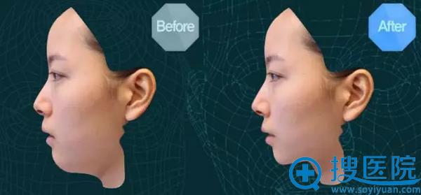 崔多慧三维立体脸部扫描结果