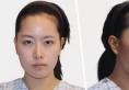 韩国face-line面部轮廓整形案例 顶级模特不再是梦想