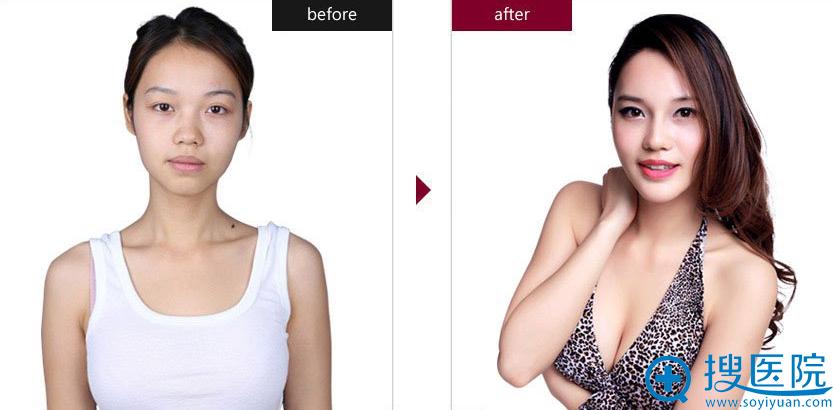 上海伊莱美李安平、李湘原医生手术案例:隆鼻、下巴整形、隆胸