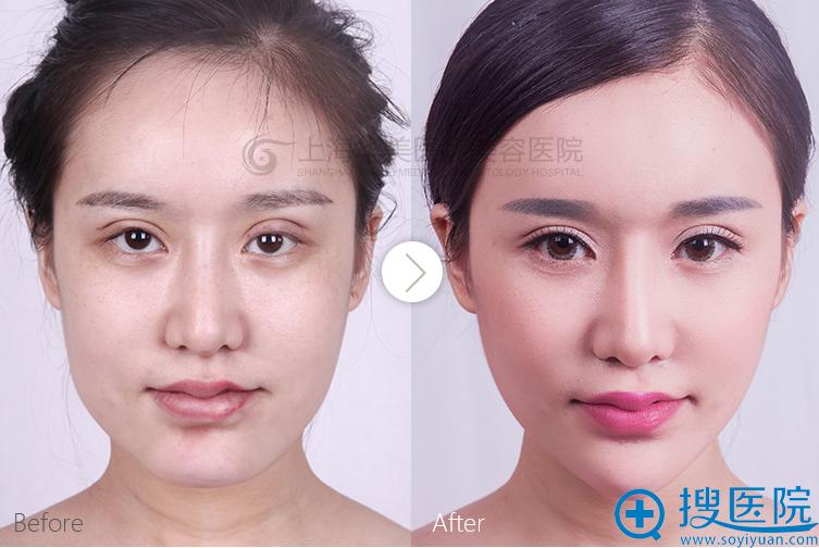 上海华美面部轮廓案例:长曲线下颌角+全面部自体脂肪填充