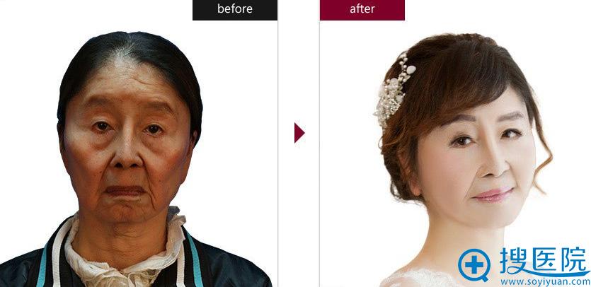 上海伊莱美李湘原医生手术案例:全面部除皱提升、脂肪填充