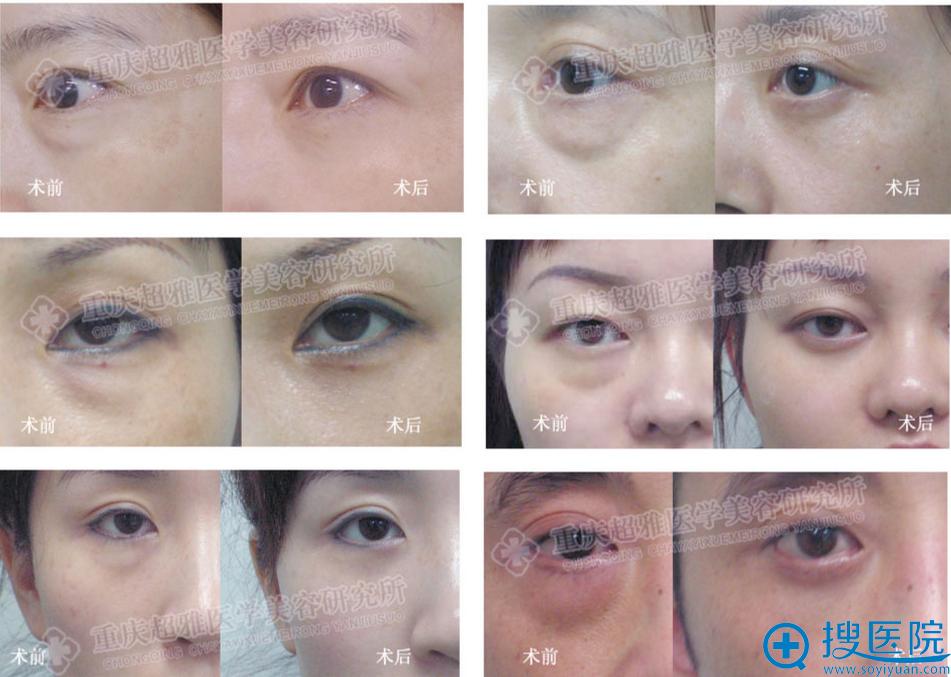 重庆超雅整形医院超声波祛眼袋案例