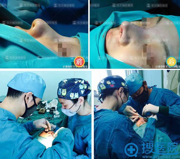 北京王军自体软骨隆鼻手术过程及效果