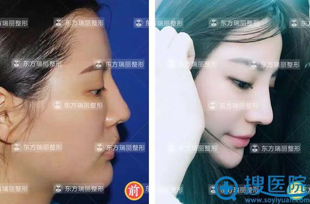 北京王军自体软骨隆鼻案例