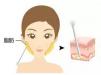 秦皇岛和生医疗整形光纤溶脂 专治肉肉脸