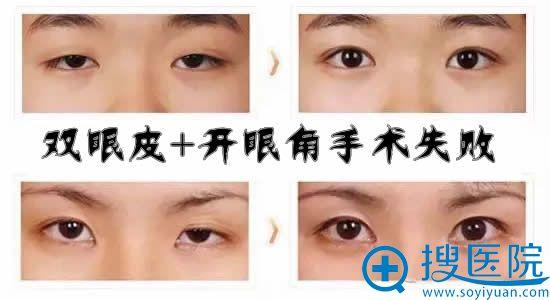 双眼皮+开眼角手术失败修复时间