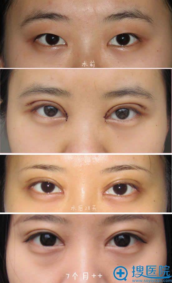 双眼皮+开眼角术后恢复过程