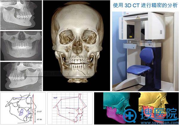 高兰得整形3D CT面部分析图