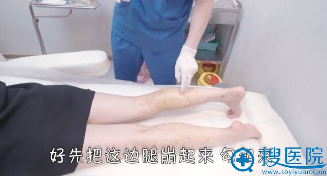 注射瘦腿针需要腿部绷起找准肌肉点