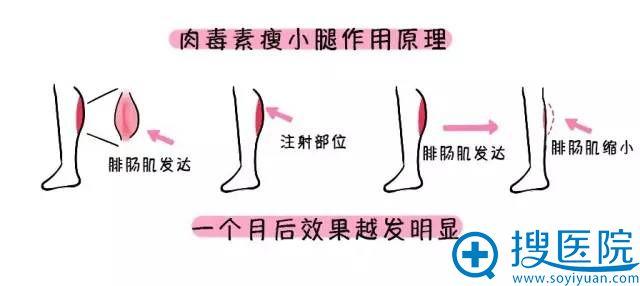 注射瘦脸除皱瘦腿针的作用原理图
