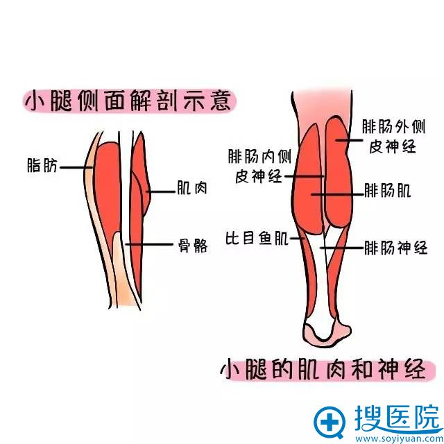 小腿粗的原因主要是肌肉粗大