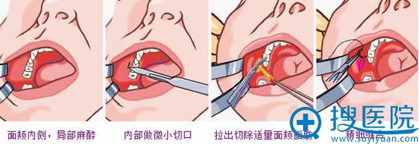 去颊脂垫手术过程图