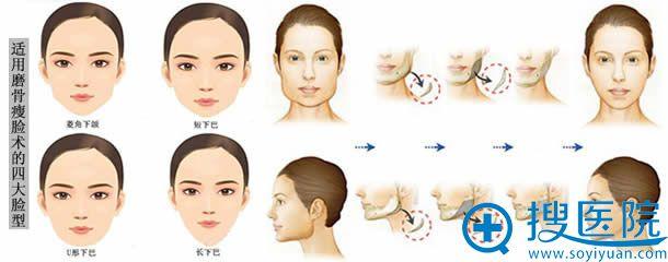 适合去颊脂垫的脸型及手术过程