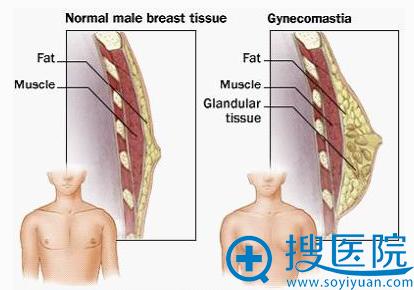 男性长乳房图示