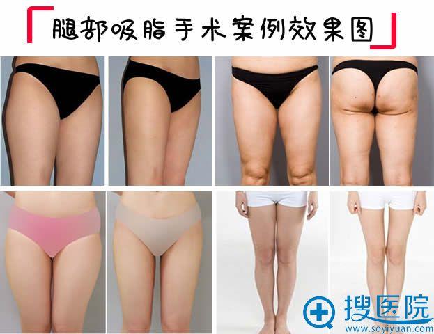 腿部吸脂案例效果对比图