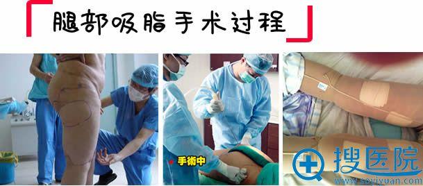 腿部吸脂手术过程及术后护理