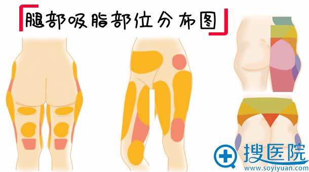 腿部吸脂部位分布图