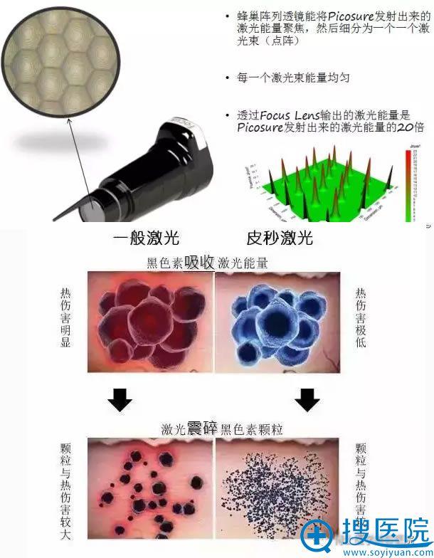 蜂巢激光核心技术分解图