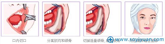梁彦下颌角手术优点