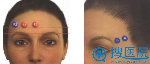 西婵整形额部和颞部注射玻尿酸