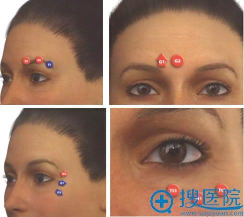 西婵整形从眼周注射玻尿酸